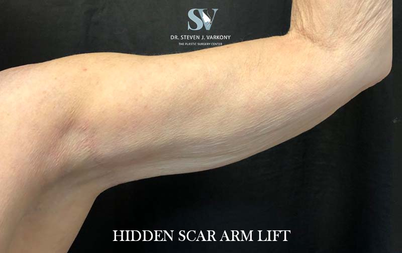 Hidden Scar Arm Lift