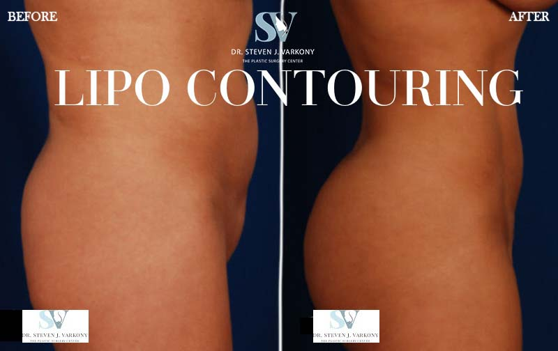 Lipo Contouring before and after