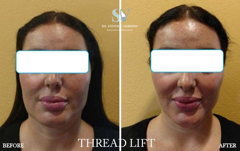 non surgical Threadlift before and after