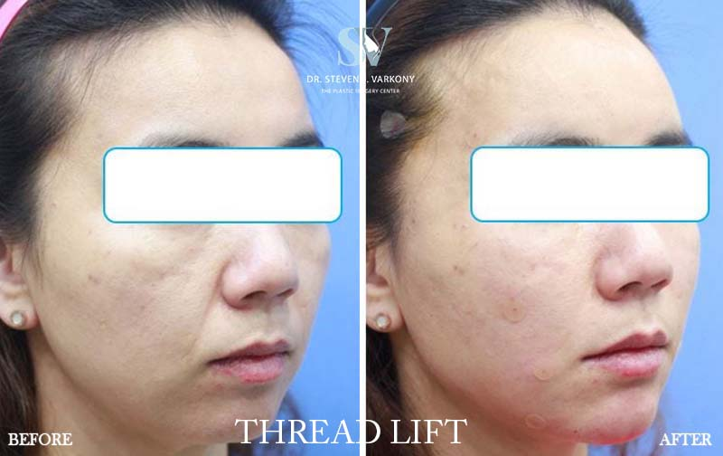 Threadlift before and after