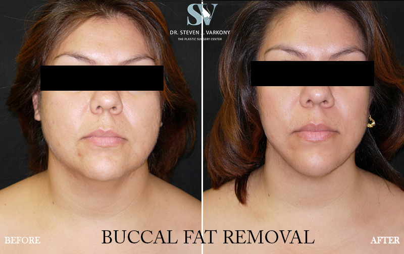 buccal fat removal before and after