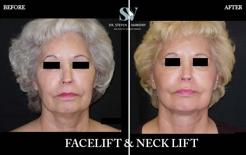 face lift and necklift with platysmaplasty