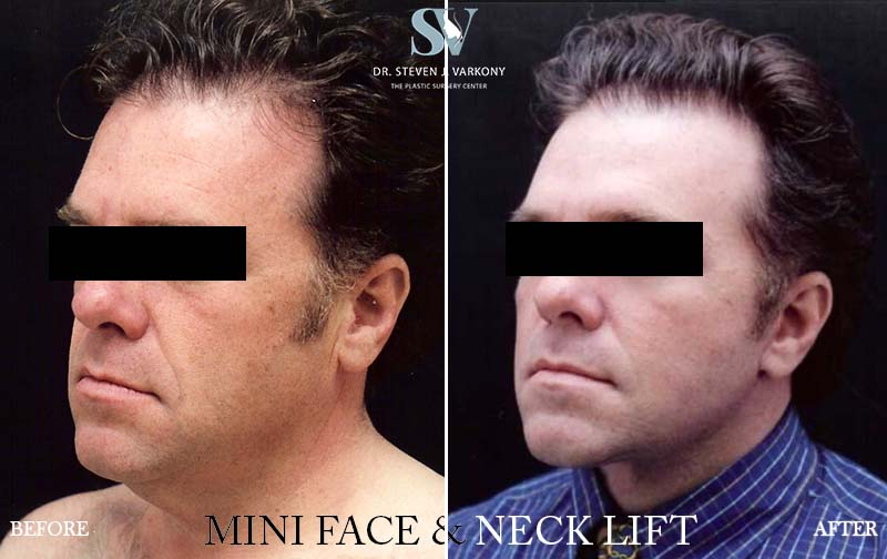 mini FaceLift and Neck lift before and after