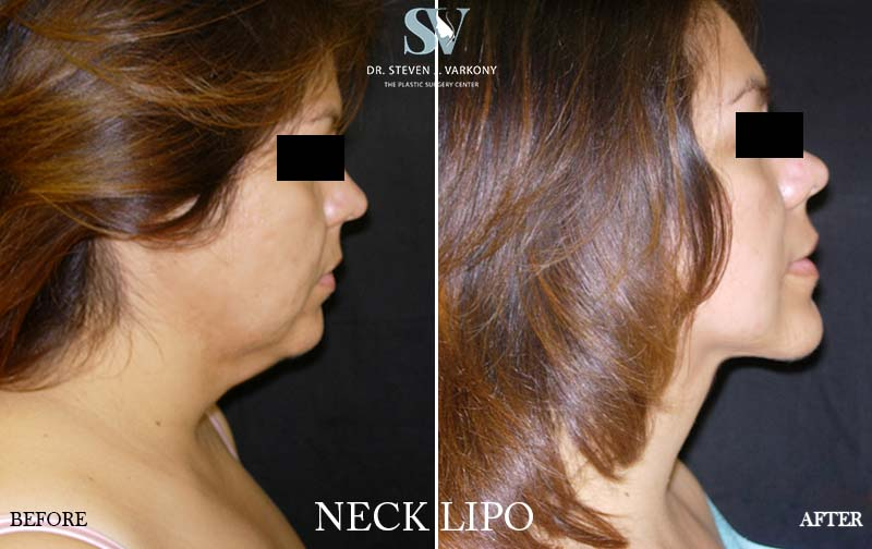 neck lipo before and after