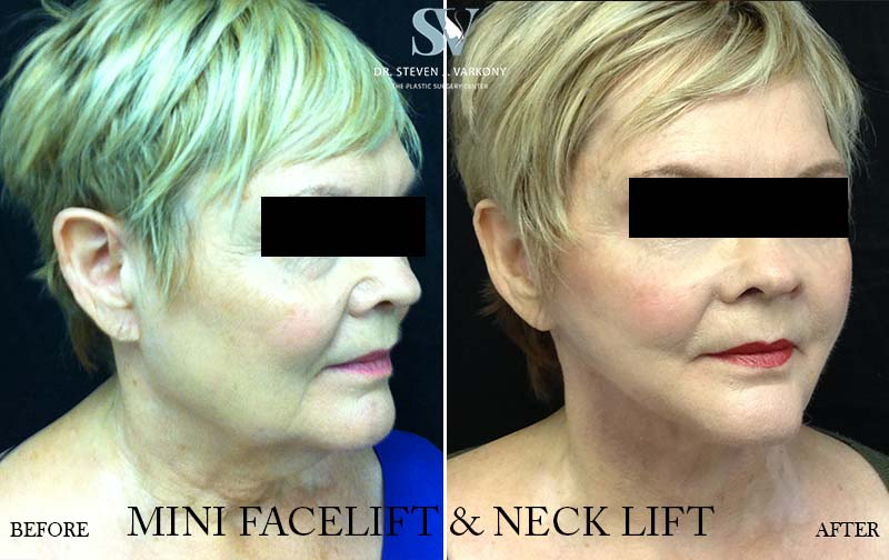 mini face and neck lift with platysmaplasty