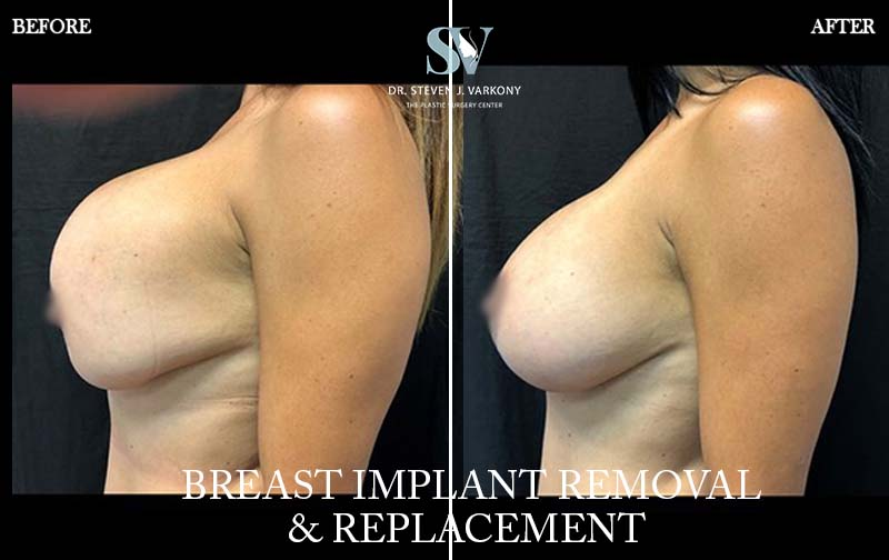 Breast Revision and implant Removal
