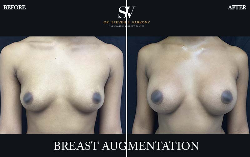 Breast augmentation encino before and after front