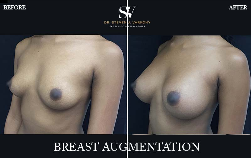 Breast augmentation encino before and after side