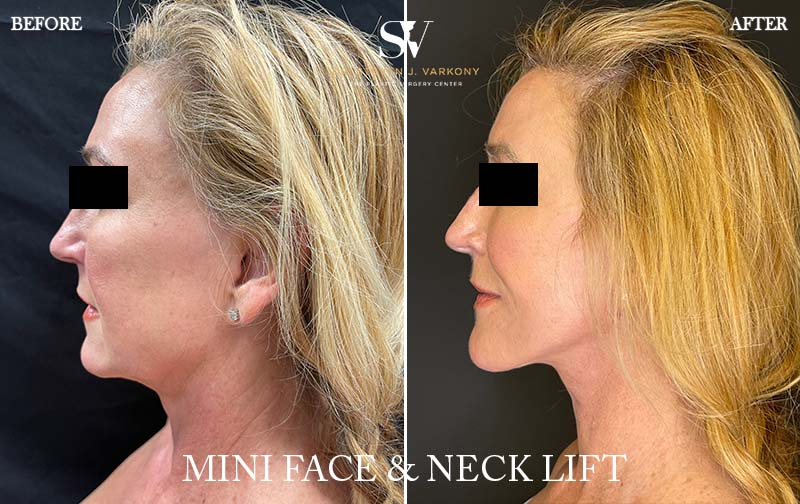 mini face and neck lift before and after result