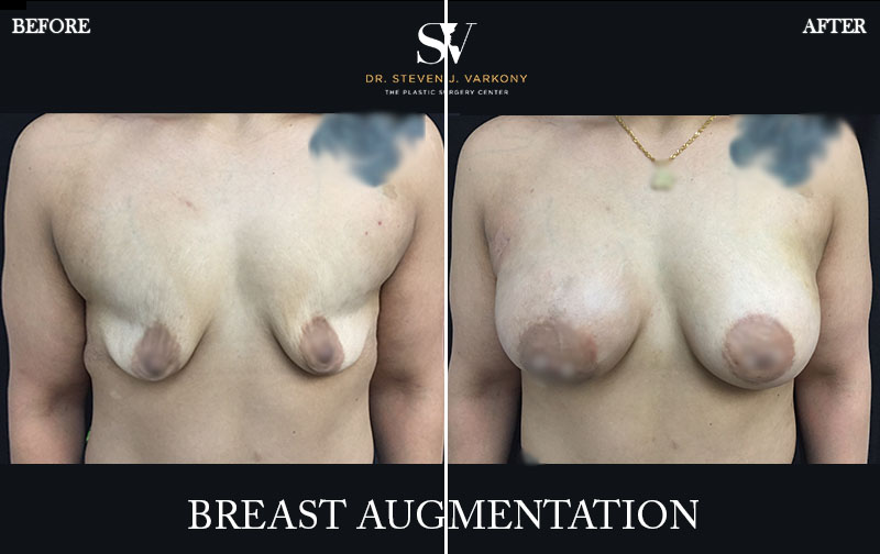 Breast augmentation encino before and after